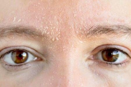 Ką daryti jei veido oda linkusi sausėti?